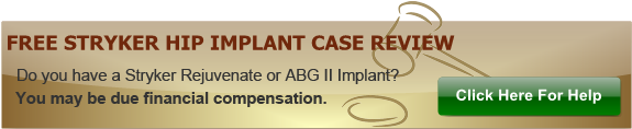 Free Stryker Hip Implant Case Review